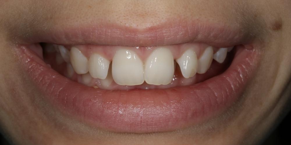 Фото 1. Фото до лечения Создание красивой улыбки (Wax up, DSD)