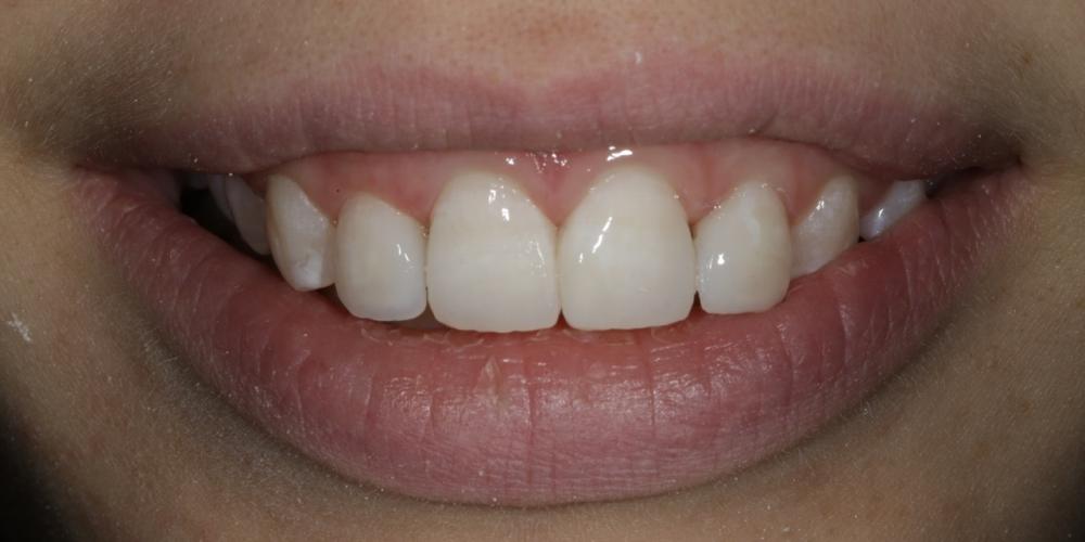 Фото 16. Проверка реставрации и финишное фото через 10 дней. Создание красивой улыбки (Wax up, DSD)