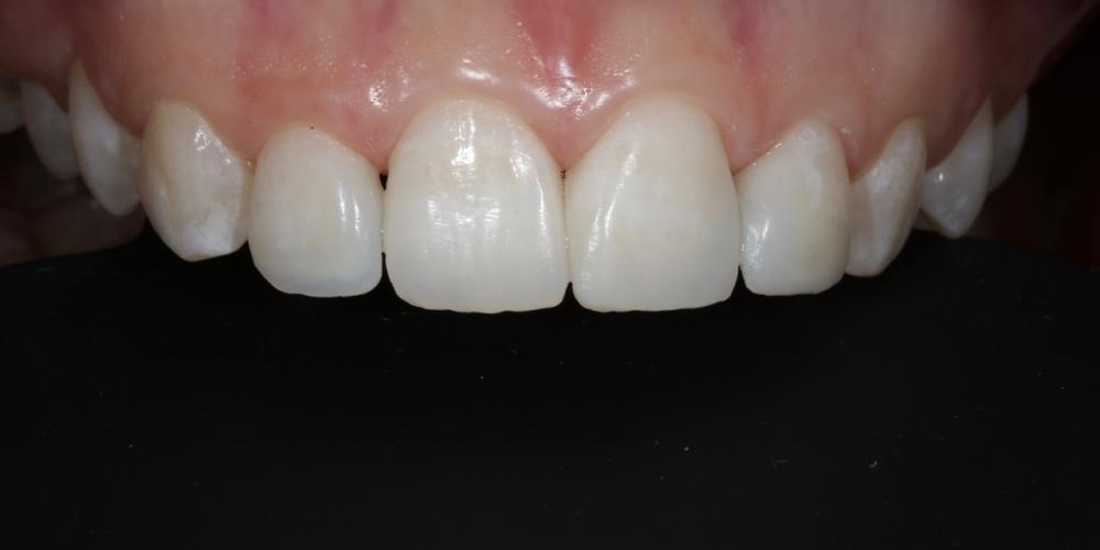 Фото 13. Готовая работа. Фронт, верхняя группа зубов. Создание красивой улыбки (Wax up, DSD)