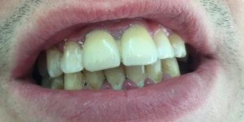 Установка металлокерамических коронок на два центральных зуба фото после лечения