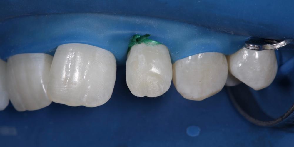 Фото 8. Восстановление двоек не требовало препарирования как такового за исключением только медиального угла зуба 2.2.Использовались два оттенка материала Estet X B1 body и прозрачный слой White. Создание красивой улыбки (Wax up, DSD)
