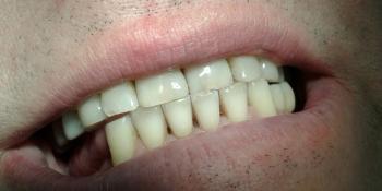 Процедура отбеливания ультразвуком с нанесением профессиональной пасты фото после лечения