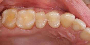 Реставрация жевательных зубов фото до лечения