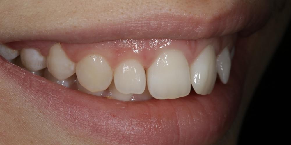 Фото 3. Полное фото, правый угол. Создание красивой улыбки (Wax up, DSD)