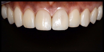 Реставрация зубов фото после лечения