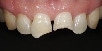 Ремонт скола зуба, ревставрация зубов из композита фото до лечения