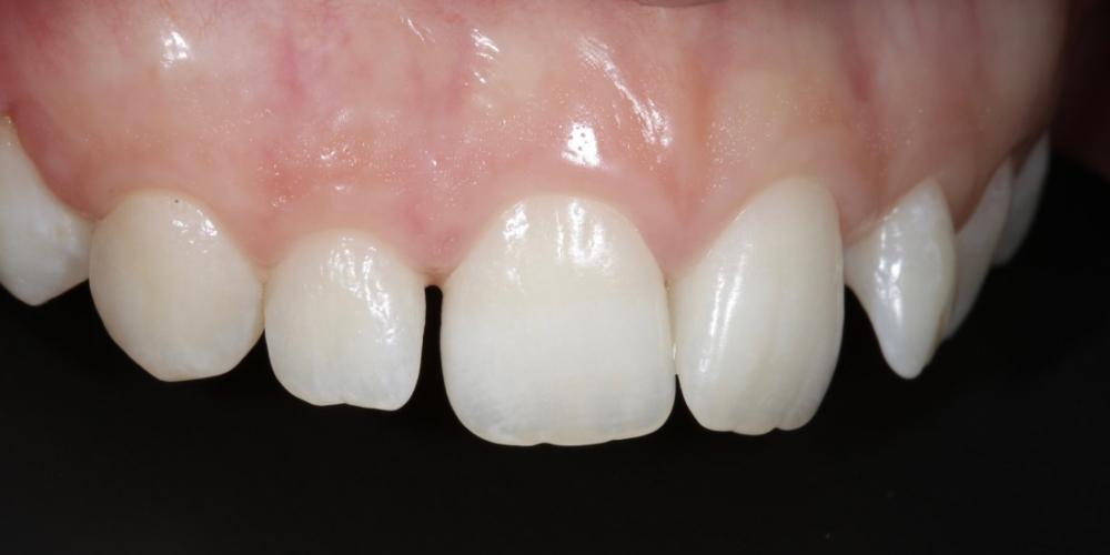 Фото 6. Фронт, верхняя группа зубов, правый угол. Создание красивой улыбки (Wax up, DSD)