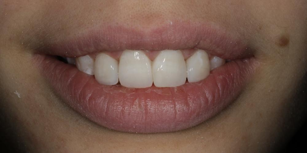 Фото 15. Фото после лечения. Создание красивой улыбки (Wax up, DSD)