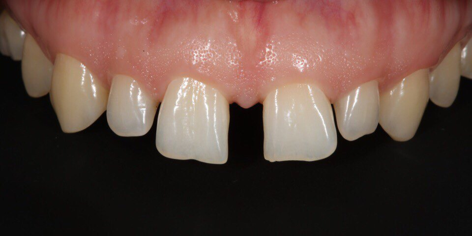 Закрытие диастемы и трем (щели) между зубами