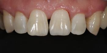 Ремонт скола зуба, ревставрация зубов из композита фото после лечения