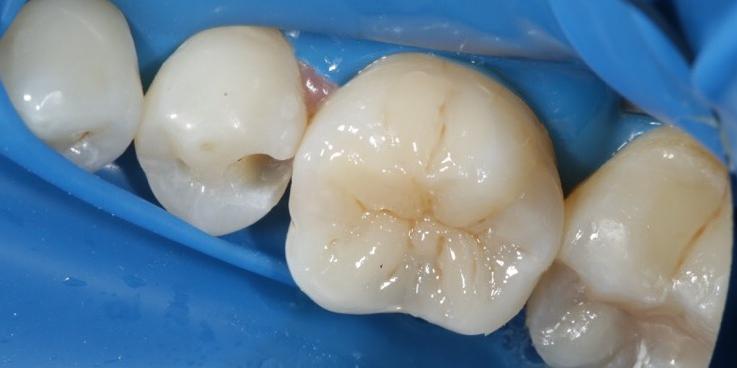 Реставрация жевательного зуба