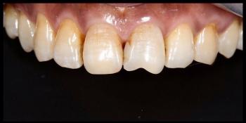 Реставрация зубов фото до лечения