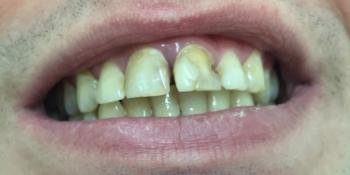 Установка металлокерамических коронок на два центральных зуба фото до лечения