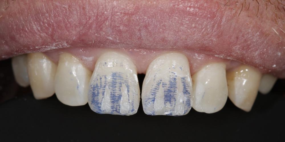 Фото ремонта передних зубов