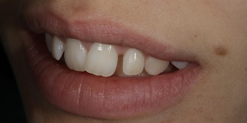 Фото 2. Полное фото, левый угол. Создание красивой улыбки (Wax up, DSD)