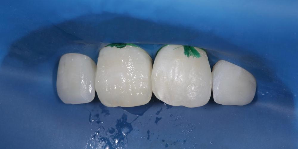 """Фото 10. У зуба 2.1 был отпрепарирован """"нависающий"""" на 1.1 зуб медиальный угол и востановлен одновременно с режущим краем симметрично рядом стоящему зубу из оттенков CERAM X duo dentin d1,Estet X B1 body и прозрачный край White. Создание красивой улыбки (Wax up, DSD)"""