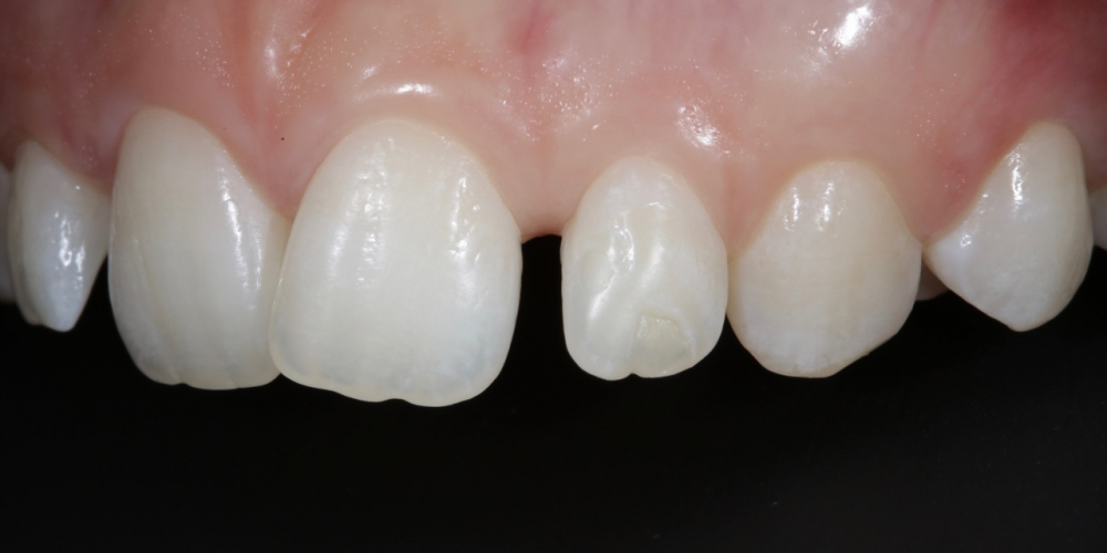 Фото 7. Фронт, верхняя группа зубов, левый угол. Создание красивой улыбки (Wax up, DSD)