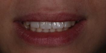 Закрытие диастемы и трем (щели) между зубами фото после лечения