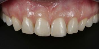Комплексная реставрация из композитов Ceram x duo dentin и эмаль Ester x фото до лечения