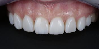 Комплексная реставрация из композитов Ceram x duo dentin и эмаль Ester x фото после лечения