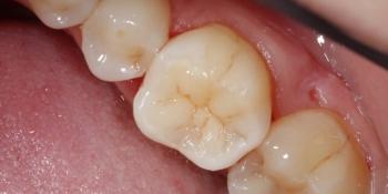 Реставрация жевательного зуба фото после лечения