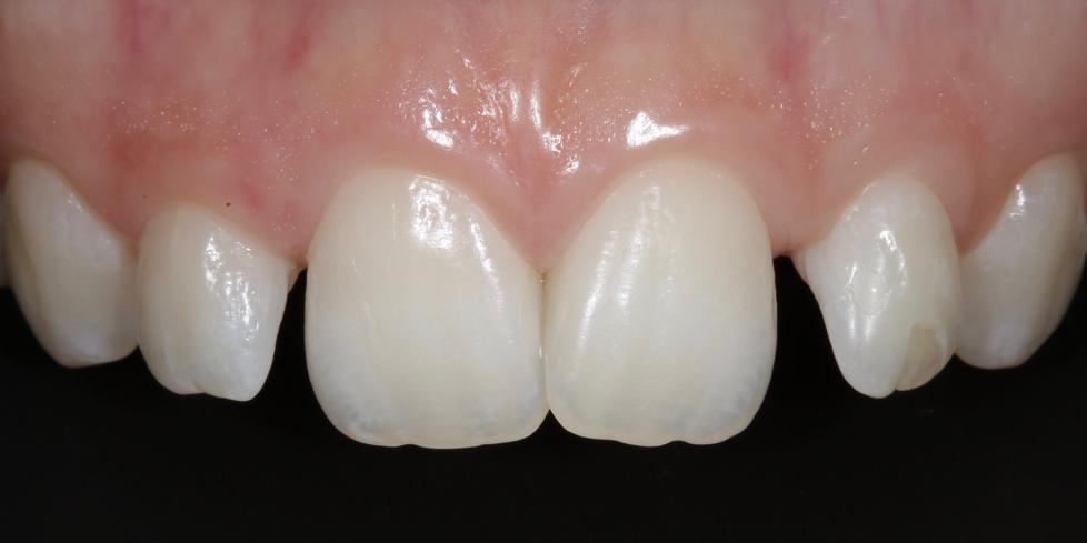 Фото 5. Фронт, верхняя группа зубов. Создание красивой улыбки (Wax up, DSD)
