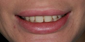 Реставрационное отбеливание зубов фото до лечения