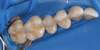 Реставрация жевательных зубов фото после лечения