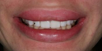 Реставрационное отбеливание зубов фото после лечения