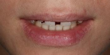 Закрытие диастемы и трем (щели) между зубами фото до лечения